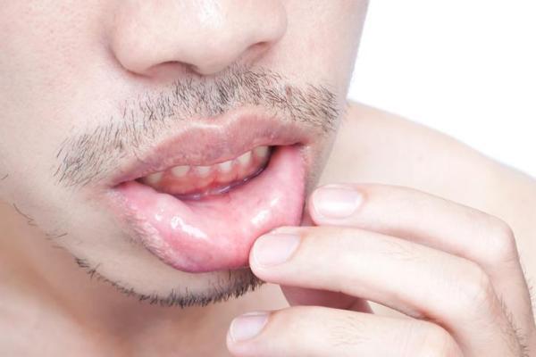 Formigamento nos lábios: o que pode ser e como tratar