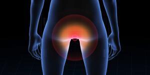 Pontadas no ânus: causas e tratamentos