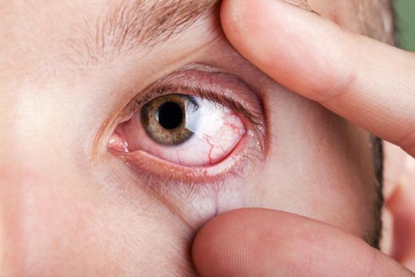 Olhos secos: causas e tratamento