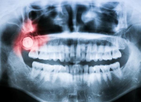 Dente do siso inflamado depois da extração: quantos dias dura