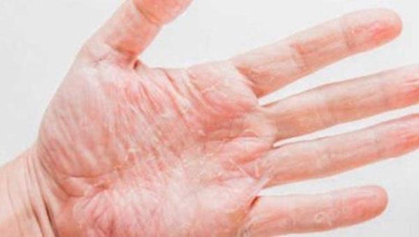 Mãos descascando: o que pode ser
