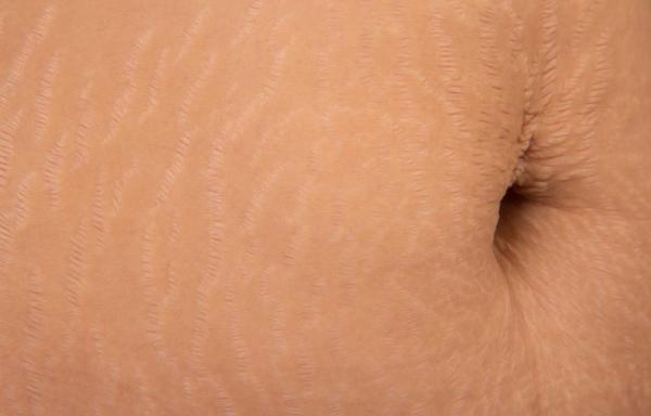 Como usar babosa para estrias - Babosa para estrias brancas