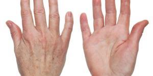 Manchas nas mãos: causas e como tirar