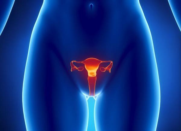 Corrimento marrom antes da menstruação: que significa - Corrimento marrom por cistos nos ovários