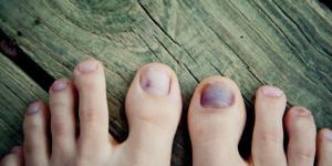 Como tirar mancha preta da unha do pé
